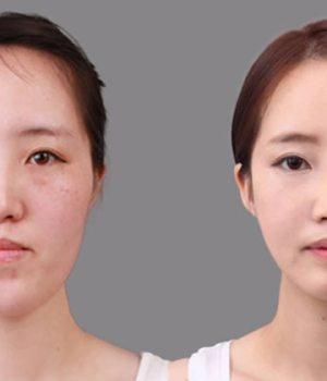 chirurgie-esthetique-coree-du-sud