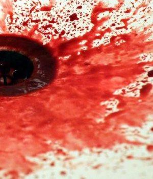 endometriose-coupe-menstruelle