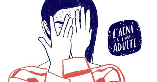 «acne-age-adulte-temoignages»