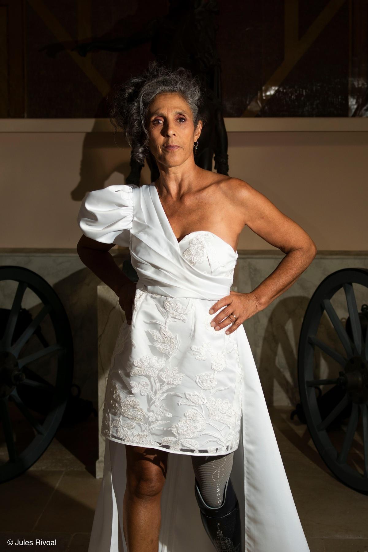 Fabienne pose en robe blanche, sa prothèse visible.