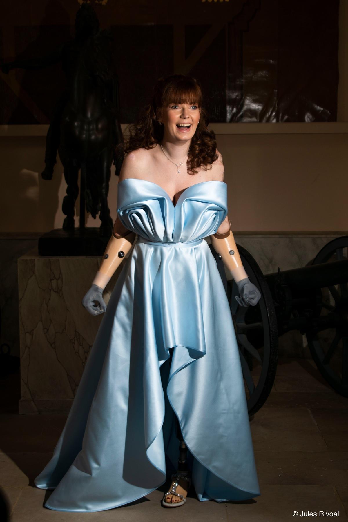 Une femme amputée de plusieurs membres pose en robe bleue.