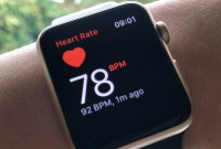 Troubles cardiaques : l'Apple Watch a officiellement aidé la médecine